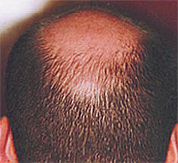 Hair loss after treatmet with Sunetics laser hair brush.