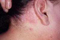 RASH ON HAIRLINE - Dermatology - MedHelp