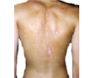 Psoriasis on back.
