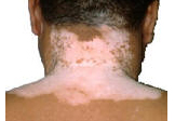 Vitiligo on back.